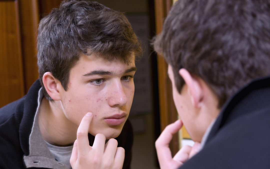 How to Prevent Acne After Shaving - 99CentRazor